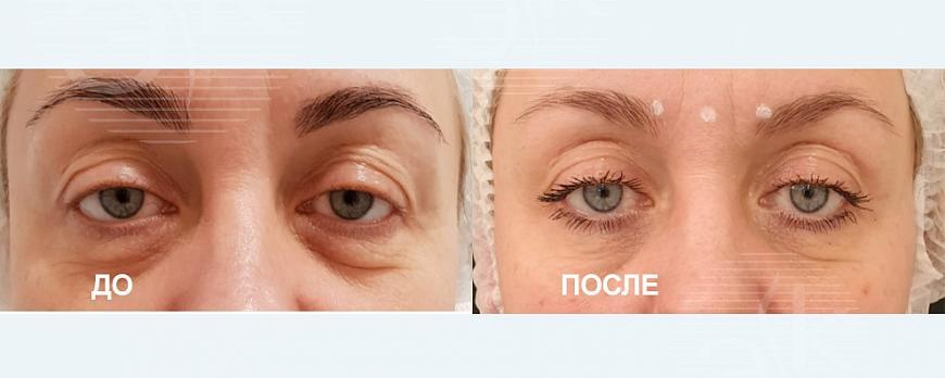Лазерная блефаропластика SMOOTH EYE Завьялова